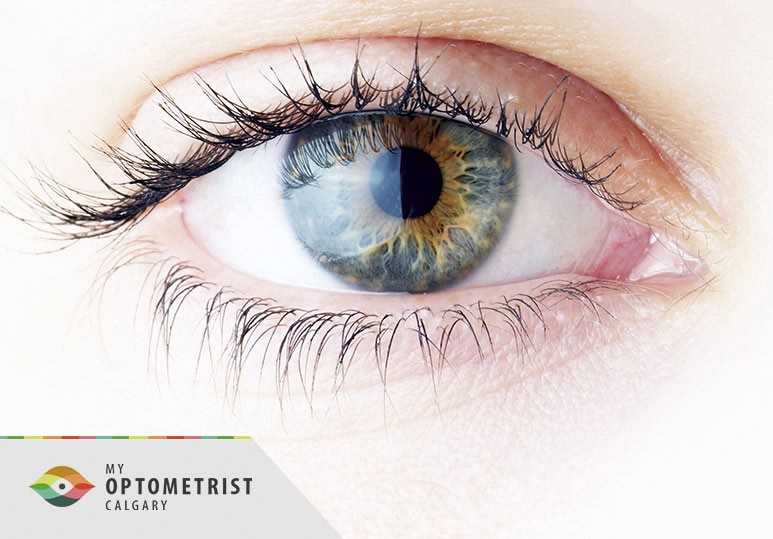 10 Surprising Things an Eye Exam Can Uncover