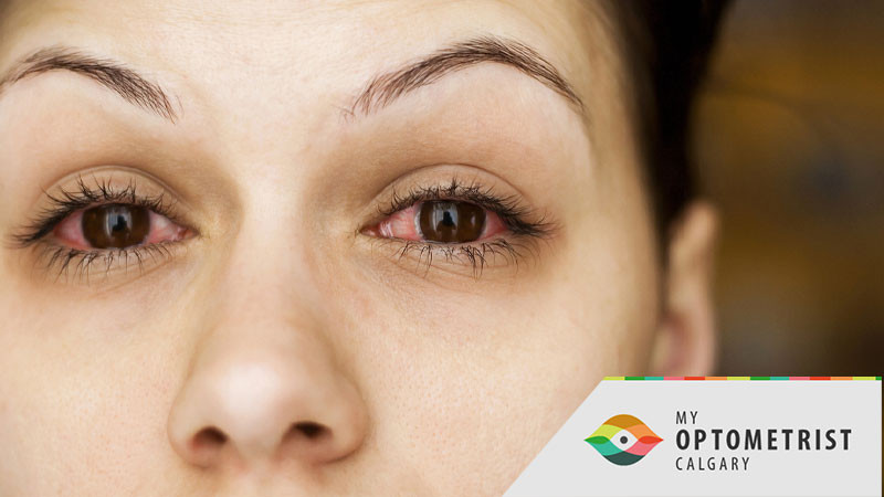 Do I Have Pink Eye? All About Conjunctivitis.