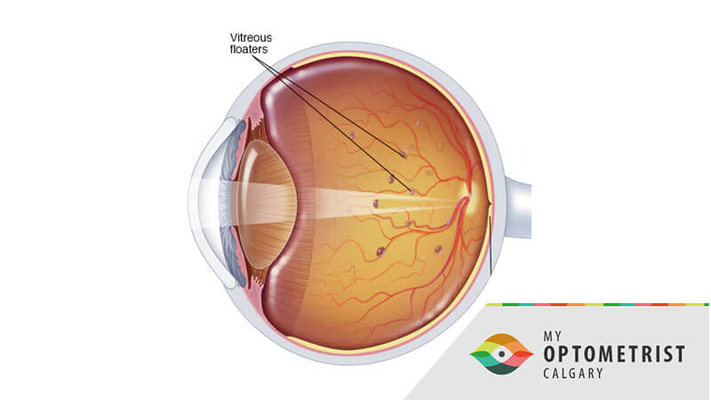 What Are Floaters And What Will an Eye Doctor Look For?